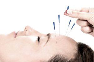 Taller acupuntura facial